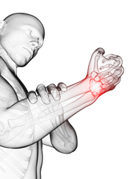 Carpal Tunnel Syndrome Compensation